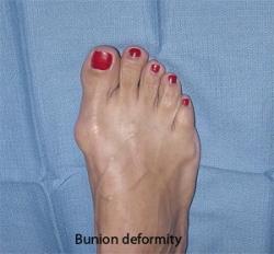hallux valgus deformity